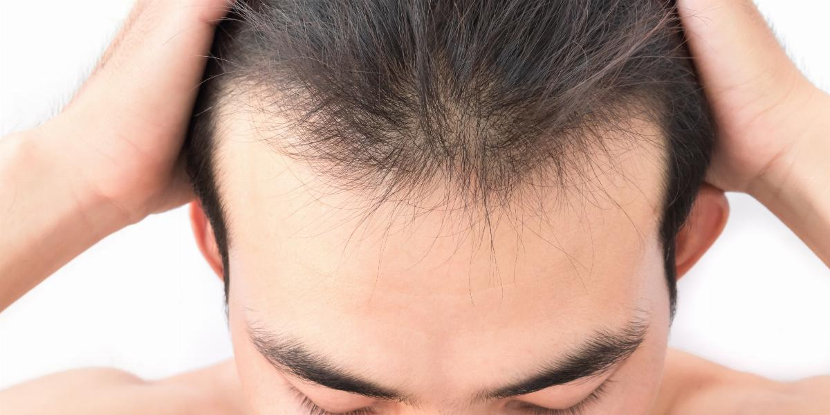 banner of There Are Ways to Stop Thinning Hair