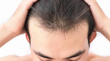 thumbnail of There Are Ways to Stop Thinning Hair